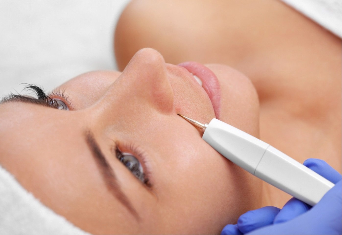 Patient receiving Acne Removal Treatment