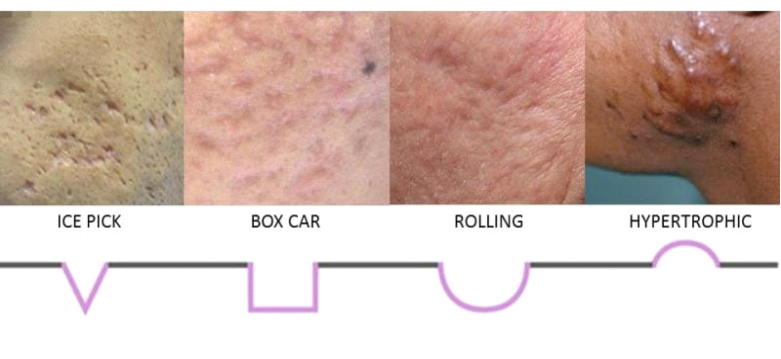 Different type of scars
