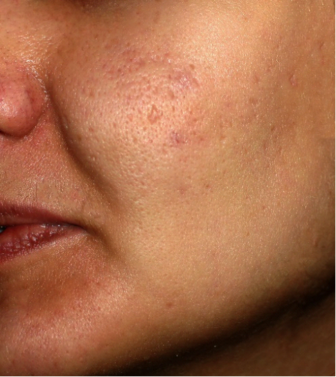 Lady's face with acne scars