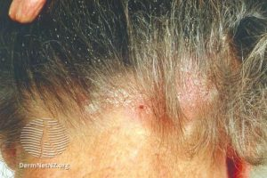 Patient suffering from scalp conditions
